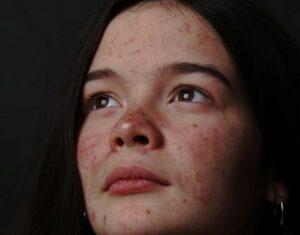 femme avec des boutons d'acné sur le visage